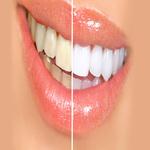 Diş Beyazlatma.jpg